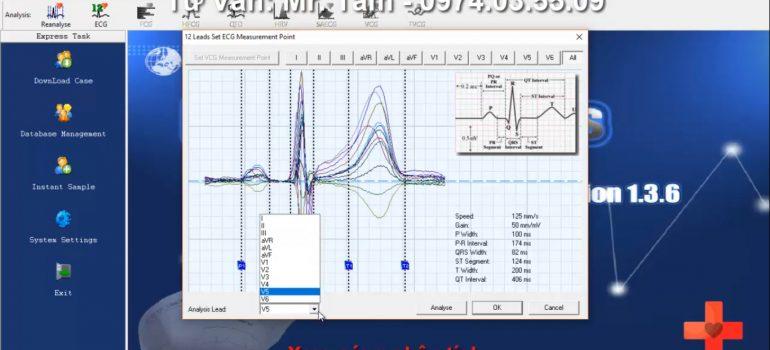 ECG Analyse