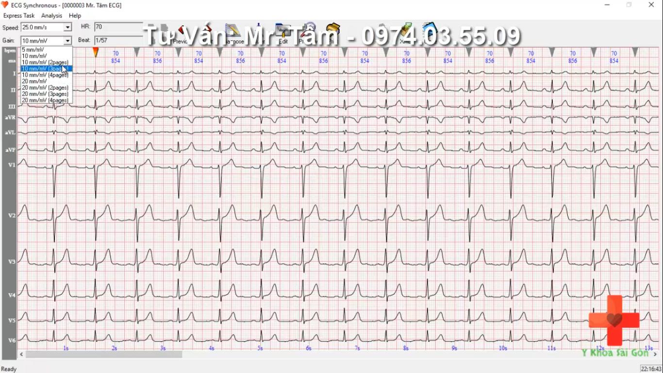 phần mềm máy ECG