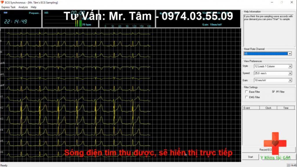 máy đo điện tim Contec trực tiếp trên máy vi tính