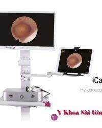 Hysteroscopy delmont