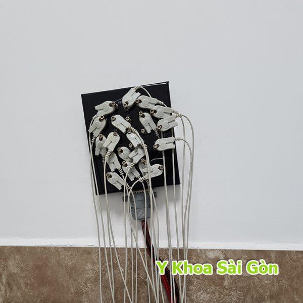 bộ chuyển tín hiệu điện não